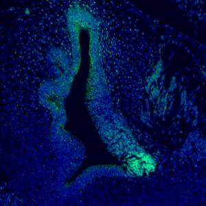 Early sensory development in the inner ear