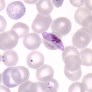 Plasmodium falciparum gametocyte among human blood cells