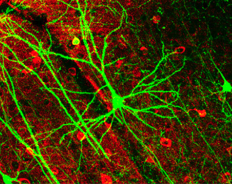 Dynamic Remodeling of Dendritic Arbors in GABAergic Interneurons of Adult Visual Cortex